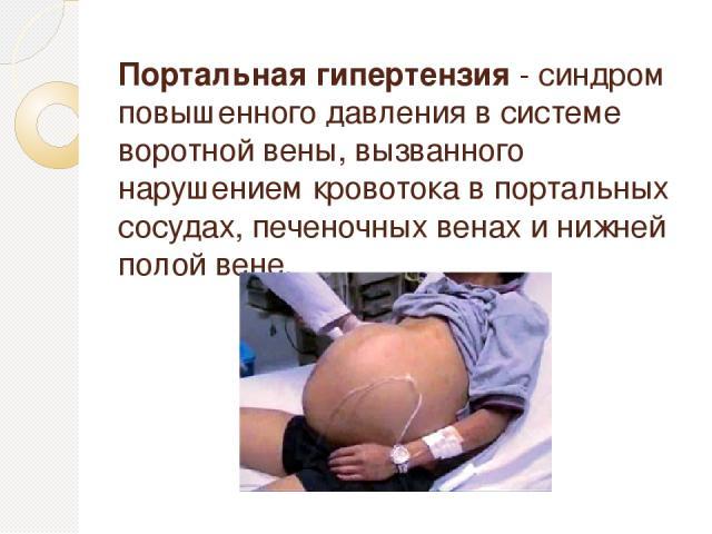 Портальная гипертензия - синдром повышенного давления в системе воротной вены, вызванного нарушением кровотока в портальных сосудах, печеночных венах и нижней полой вене.