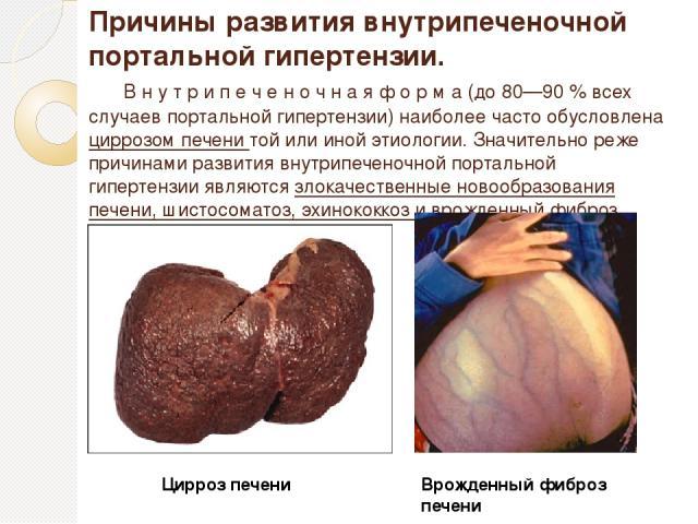 Причины развития внутрипеченочной портальной гипертензии. В н у т р и п е ч е н о ч н а я ф о р м а (до 80—90 % всех случаев портальной гипертензии) наиболее часто обусловлена циррозом печени той или иной этиологии. Значительно реже причинами развит…