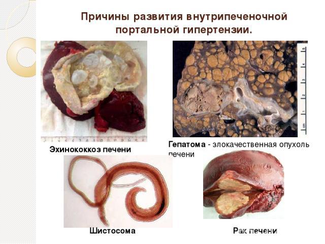 Причины развития внутрипеченочной портальной гипертензии. Эхинококкоз печени Гепатома - злокачественная опухоль печени Рак печени Шистосома