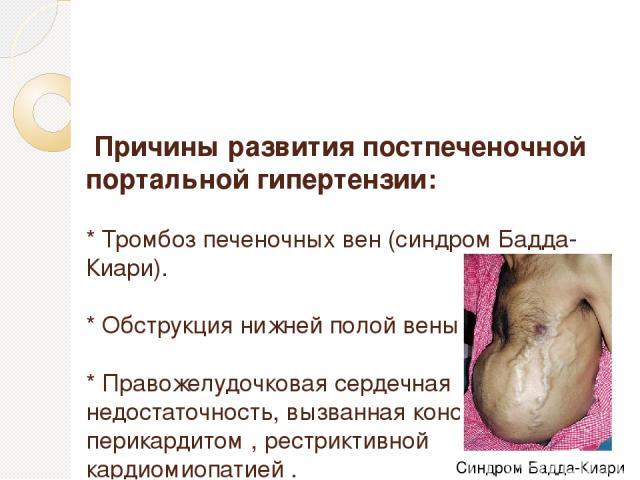 Причины развития постпеченочной портальной гипертензии: * Тромбоз печеночных вен (синдром Бадда-Киари). * Обструкция нижней полой вены. * Правожелудочковая сердечная недостаточность, вызванная констриктивным перикардитом , рестриктивной кардиомиопат…