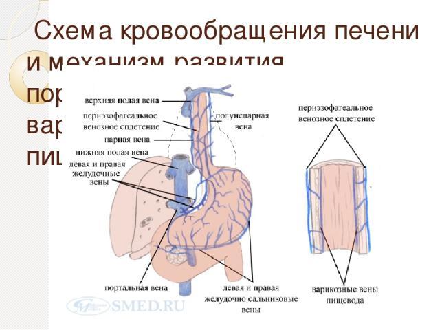Схема кровообращения печени и механизм развития портальной гипертензии и варикозного расширения вен пищевода