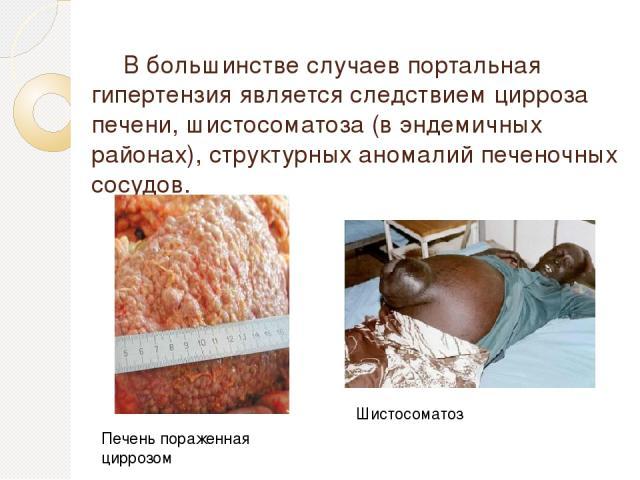 В большинстве случаев портальная гипертензия является следствием цирроза печени, шистосоматоза (в эндемичных районах), структурных аномалий печеночных сосудов. Шистосоматоз Печень пораженная циррозом