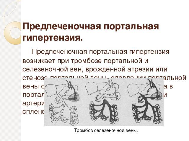 Предпеченочная портальная гипертензия. Предпеченочная портальная гипертензия возникает при тромбозе портальной и селезеночной вен, врожденной атрезии или стенозе портальной вены, сдавлении портальной вены опухолями; при увеличении кровотока в портал…