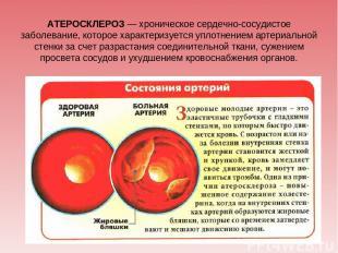 АТЕРОСКЛЕРОЗ — хроническое сердечно-сосудистое заболевание, которое характеризуе