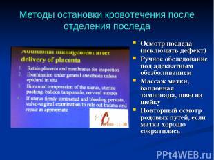 Методы остановки кровотечения после отделения последа Осмотр последа (исключить