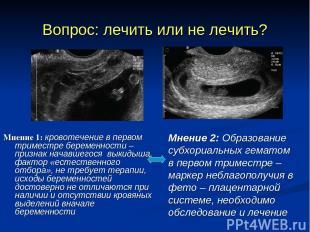 Вопрос: лечить или не лечить? Мнение 1: кровотечение в первом триместре беременн