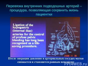 Перевязка внутренних подвздошных артерий – процедура, позволяющая сохранить жизн