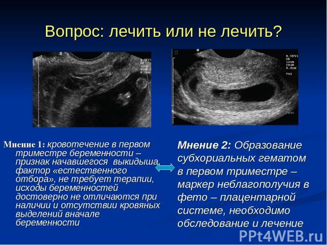 Вопрос: лечить или не лечить? Мнение 1: кровотечение в первом триместре беременности – признак начавшегося выкидыша, фактор «естественного отбора», не требует терапии, исходы беременностей достоверно не отличаются при наличии и отсутствии кровяных в…