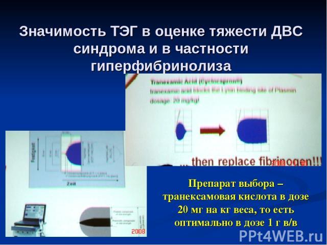 Значимость ТЭГ в оценке тяжести ДВС синдрома и в частности гиперфибринолиза Препарат выбора – транексамовая кислота в дозе 20 мг на кг веса, то есть оптимально в дозе 1 г в/в
