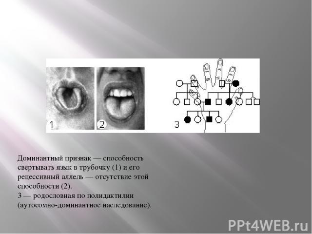 Доминантный признак — способность свертывать язык в трубочку (1) и его рецессивный аллель — отсутствие этой способности (2). 3— родословная по полидактилии (аутосомно-доминантное наследование).