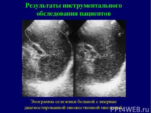 Эхограмма селезенки больной с впервые диагностированной множественной миеломой Р