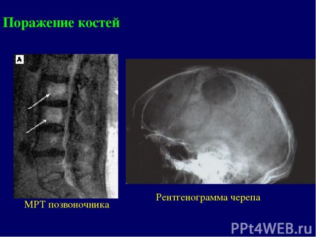 МРТ позвоночника Рентгенограмма черепа Поражение костей