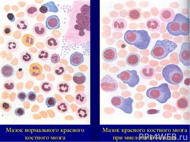 Мазок нормального красного костного мозга Мазок красного костного мозга при миеломной болезни