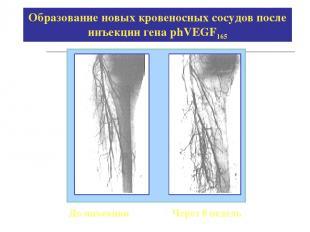 Образование новых кровеносных сосудов после инъекции гена phVEGF165 До инъекции