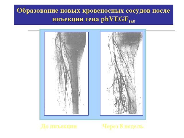 Образование новых кровеносных сосудов после инъекции гена phVEGF165 До инъекции Через 8 недель