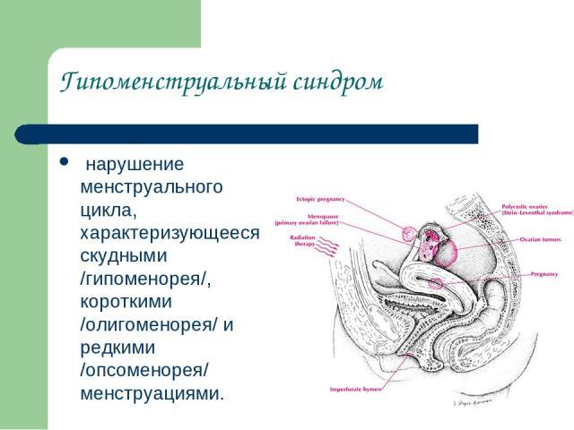 Гипоменструальный синдром нарушение менструального цикла, характеризующееся скудными /гипоменорея/, короткими /олигоменорея/ и редкими /опсоменорея/ менструациями.