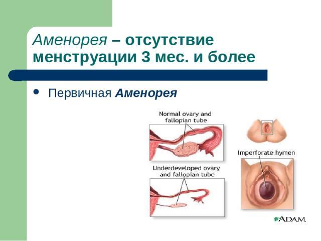 Аменорея – отсутствие менструации 3 мес. и более Первичная Аменорея