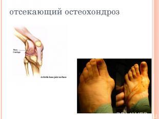 отсекающий остеохондроз