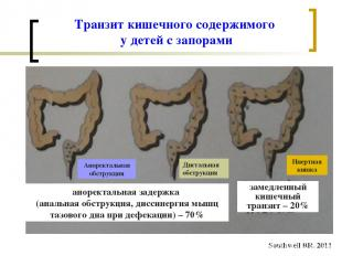 Транзит кишечного содержимого у детей с запорами Southwell BR. 2011