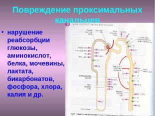 Повреждение проксимальных канальцев нарушение реабсорбции глюкозы, аминокислот,