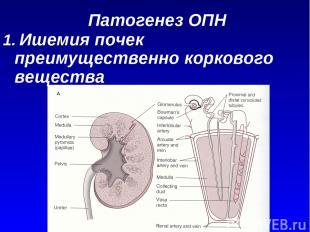Патогенез ОПН 1. Ишемия почек преимущественно коркового вещества