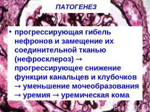 ПАТОГЕНЕЗ прогрессирующая гибель нефронов и замещение их соединительной тканью (