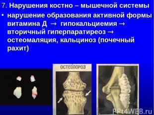 7. Нарушения костно – мышечной системы нарушение образования активной формы вита