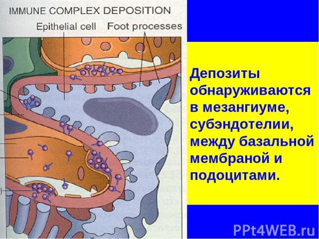Депозиты обнаруживаются в мезангиуме, субэндотелии, между базальной мембраной и подоцитами.
