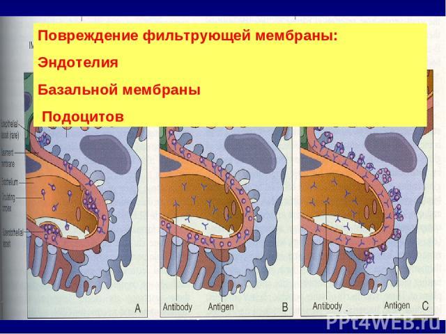 Повреждение фильтрующей мембраны: Эндотелия Базальной мембраны Подоцитов