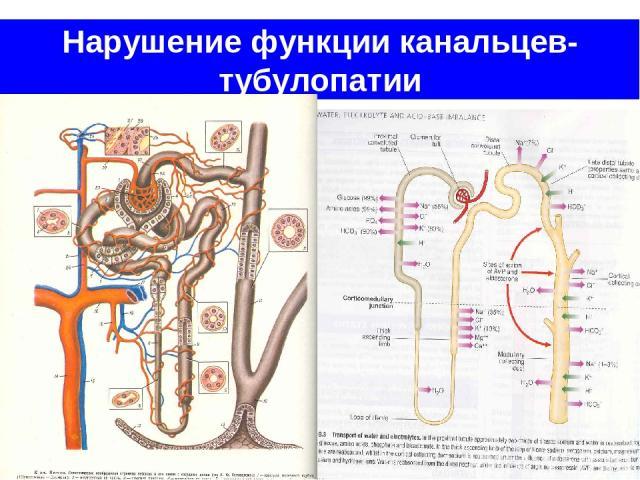 Нарушение функции канальцев- тубулопатии