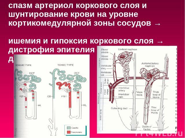 спазм артериол коркового слоя и шунтирование крови на уровне кортикомедулярной зоны сосудов → ишемия и гипоксия коркового слоя → дистрофия эпителия канальцев вплоть до некроза.