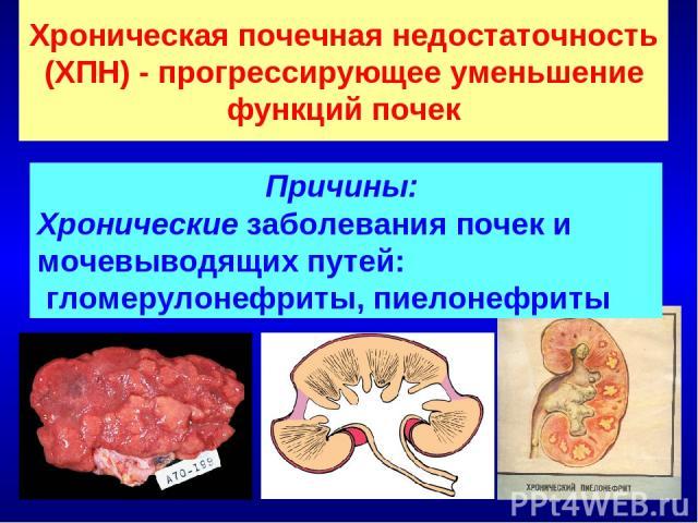 Хроническая почечная недостаточность (ХПН) - прогрессирующее уменьшение функций почек Причины: Хронические заболевания почек и мочевыводящих путей: гломерулонефриты, пиелонефриты