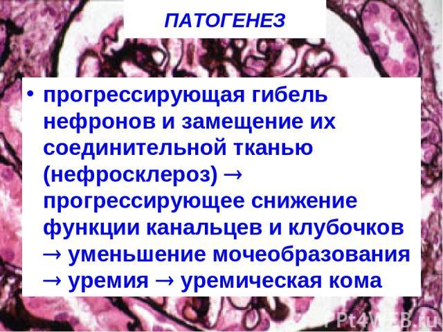 ПАТОГЕНЕЗ прогрессирующая гибель нефронов и замещение их соединительной тканью (нефросклероз) прогрессирующее снижение функции канальцев и клубочков уменьшение мочеобразования уремия уремическая кома