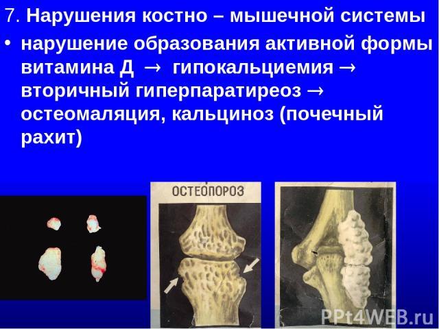 7. Нарушения костно – мышечной системы нарушение образования активной формы витамина Д гипокальциемия вторичный гиперпаратиреоз остеомаляция, кальциноз (почечный рахит)