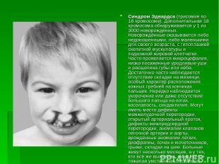 Синдром Эдвардса (трисомия по 18 хромосоме). Дополнительная 18 хромосома обнаруж