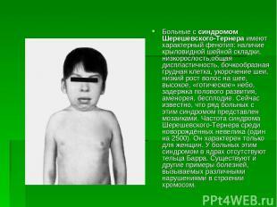 Больные с синдромом Шерешевского-Тернера имеют характерный фенотип: наличие крыл