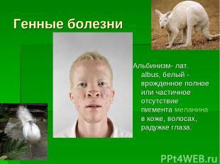 Генные болезни Альбинизм- лат. albus, белый - врожденное полное или частичное от