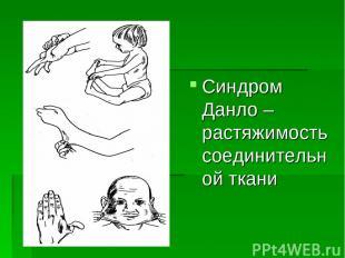 Синдром Данло – растяжимость соединительной ткани