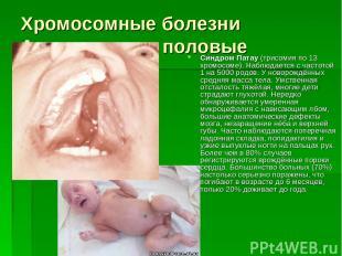 Хромосомные болезни Аутосомные и половые Синдром Патау (трисомия по 13 хромосоме