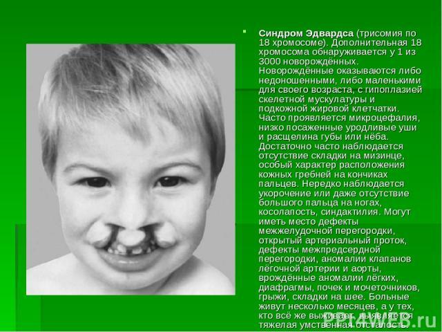 Синдром Эдвардса (трисомия по 18 хромосоме). Дополнительная 18 хромосома обнаруживается у 1 из 3000 новорождённых. Hоворождённые оказываются либо недоношенными, либо маленькими для своего возраста, с гипоплазией скелетной мускулатуры и подкожной жир…
