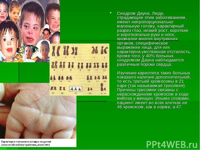 Синдром Дауна. Люди, страдающие этим заболеванием, имеют непропорционально маленькую голову, характерный разрез глаз, низкий рост, короткие и короткопалые руки и ноги, аномалии многих внутренних органов, специфическое выражение лица, для них характе…