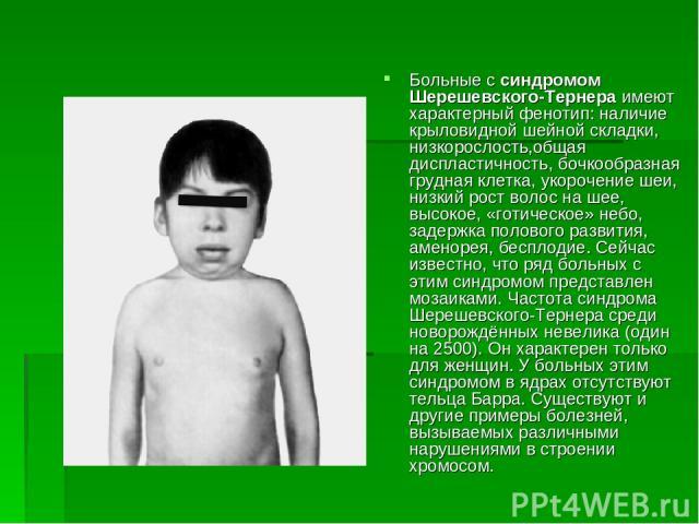 Больные с синдромом Шерешевского-Тернера имеют характерный фенотип: наличие крыловидной шейной складки, низкорослость,общая диспластичность, бочкообразная грудная клетка, укорочение шеи, низкий рост волос на шее, высокое, «готическое» небо, задержка…