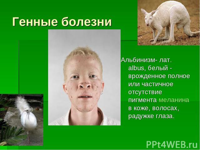Генные болезни Альбинизм- лат. albus, белый - врожденное полное или частичное отсутствие пигмента меланина в коже, волосах, радужке глаза.