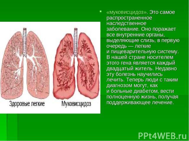 «муковисцидоз». Это самое распространенное наследственное заболевание. Оно поражает все внутренние органы, выделяющие слизь, впервую очередь— легкие ипищеварительную систему. Внашей стране носителем этого гена является каждый двадцатый житель. Н…