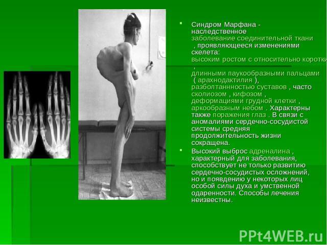 Синдром Марфана - наследственное заболевание соединительной ткани , проявляющееся изменениями скелета: высоким ростом с относительно коротким туловищем , длинными паукообразными пальцами ( арахнодактилия ), разболтаннностью суставов , часто сколиозо…