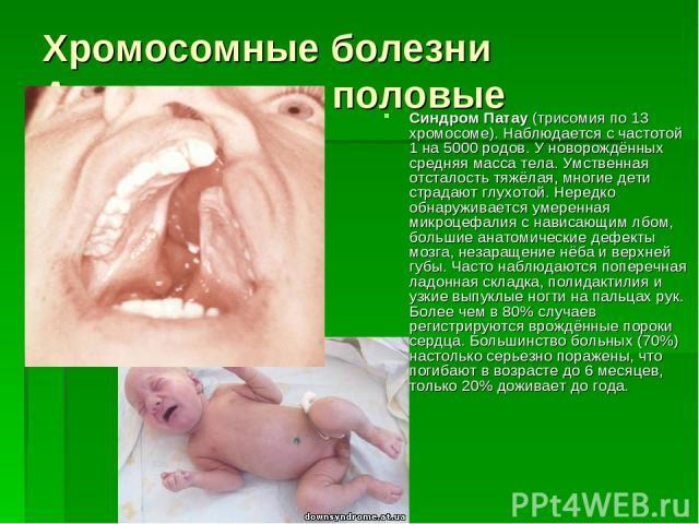 Хромосомные болезни Аутосомные и половые Синдром Патау (трисомия по 13 хромосоме). Наблюдается с частотой 1 на 5000 родов. У новорождённых средняя масса тела. Умственная отсталость тяжёлая, многие дети страдают глухотой. Нередко обнаруживается умере…