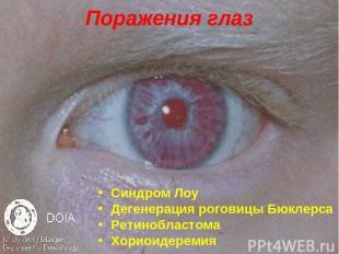 Поражения глаз Синдром Лоу Дегенерация роговицы Бюклерса Ретинобластома Хориоиде