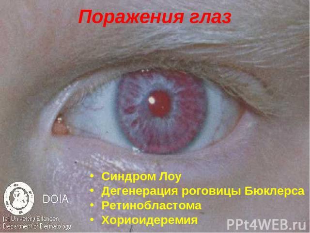 Поражения глаз Синдром Лоу Дегенерация роговицы Бюклерса Ретинобластома Хориоидеремия