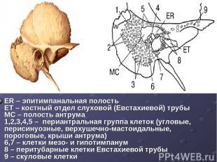 ER – эпитимпанальная полость ET – костный отдел слуховой (Евстахиевой) трубы MC