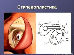 Стапедопластика